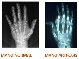 manos comparativa